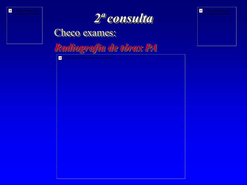 2ª consulta Checo exames: Radiografia de tórax PA Checo exames: Radiografia de tórax PA