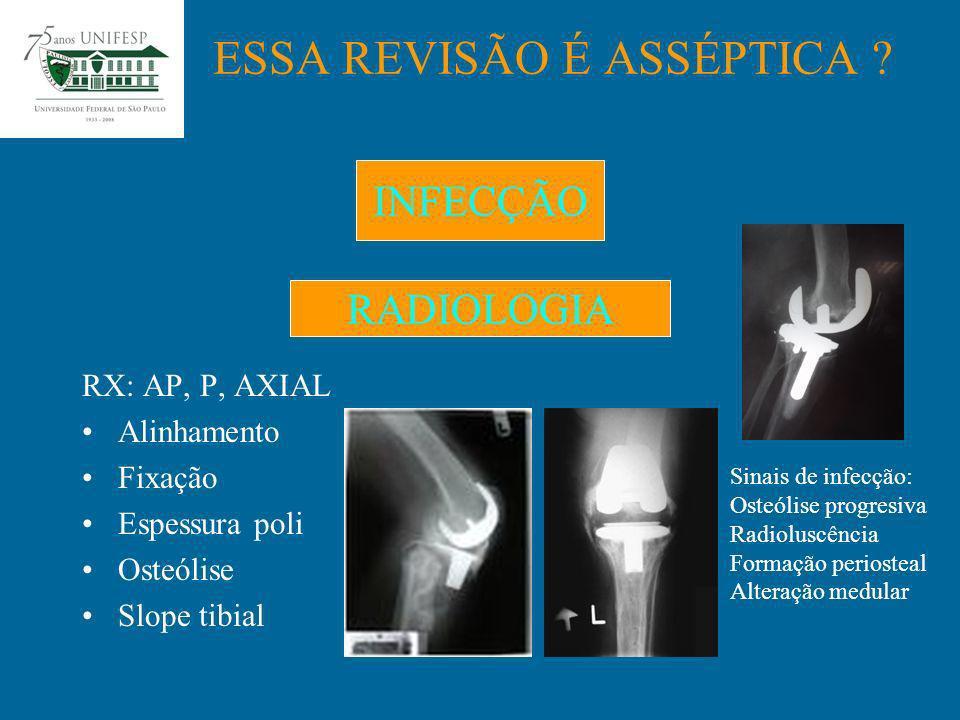 RX: AP, P, AXIAL Alinhamento Fixação Espessura poli Osteólise Slope tibial ESSA REVISÃO É ASSÉPTICA ? RADIOLOGIA INFECÇÃO Sinais de infecção: Osteólis