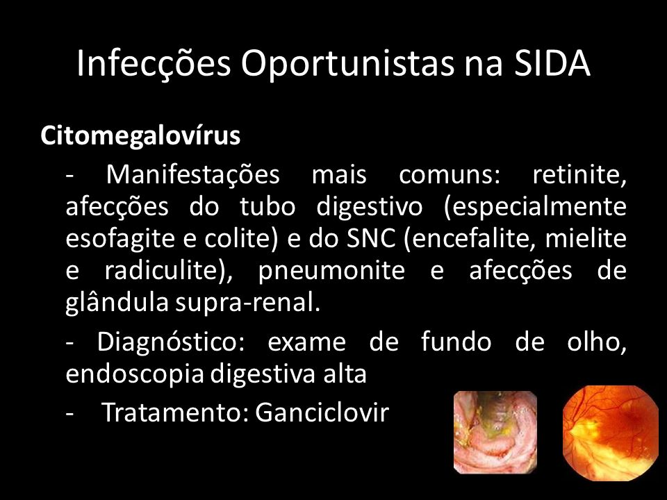 Infecções Oportunistas na SIDA Complexo Mycobacterium avium-intracellulare (MAC) - Acomete indivíduos com imunodeficiência avançada e contagem de linfócitos T CD4+ < 50 ou 100 cel/mm 3.