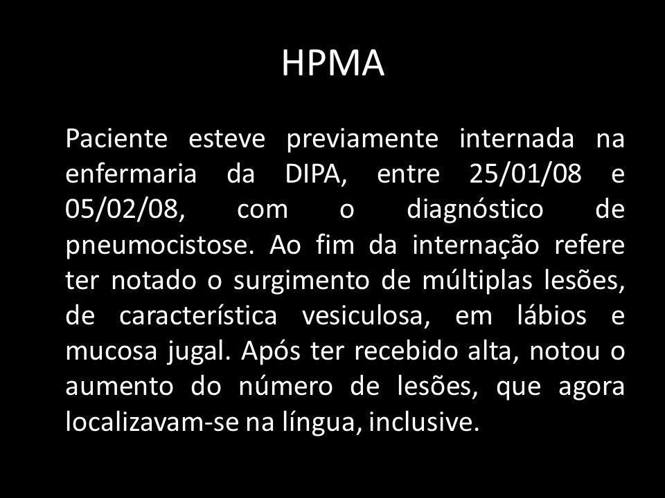 HPMA Junto com o aumento das lesões passou a sentir intensa odinofagia, que impossibilitava o consumo de alimentos sólidos ou líquidos, piorava ao tossir e não apresentava fatores de melhora.
