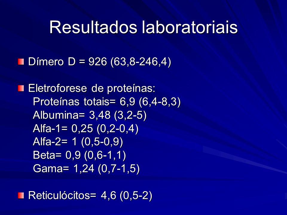 Resultados laboratoriais Dímero D = 926 (63,8-246,4) Eletroforese de proteínas: Proteínas totais= 6,9 (6,4-8,3) Proteínas totais= 6,9 (6,4-8,3) Albumina= 3,48 (3,2-5) Albumina= 3,48 (3,2-5) Alfa-1= 0,25 (0,2-0,4) Alfa-1= 0,25 (0,2-0,4) Alfa-2= 1 (0,5-0,9) Alfa-2= 1 (0,5-0,9) Beta= 0,9 (0,6-1,1) Beta= 0,9 (0,6-1,1) Gama= 1,24 (0,7-1,5) Gama= 1,24 (0,7-1,5) Reticulócitos= 4,6 (0,5-2)