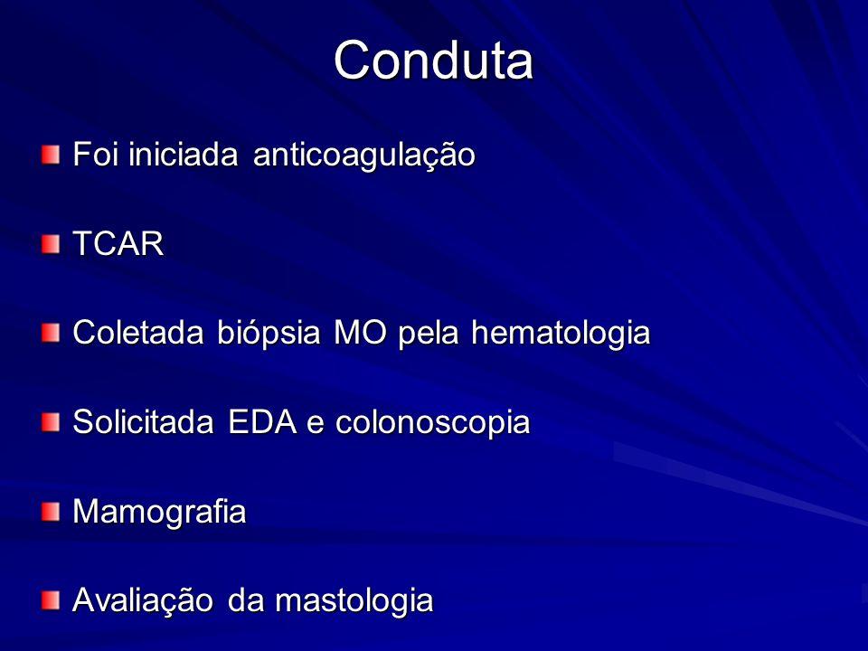 Conduta Foi iniciada anticoagulação TCAR Coletada biópsia MO pela hematologia Solicitada EDA e colonoscopia Mamografia Avaliação da mastologia