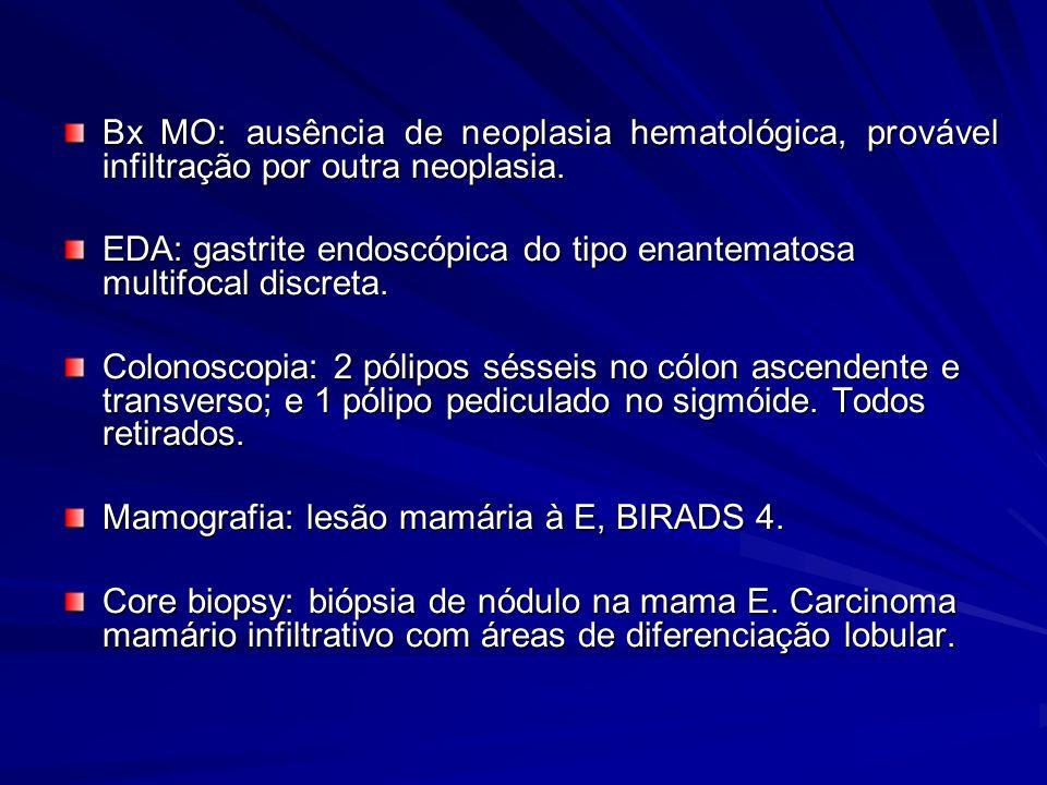 Bx MO: ausência de neoplasia hematológica, provável infiltração por outra neoplasia. EDA: gastrite endoscópica do tipo enantematosa multifocal discret