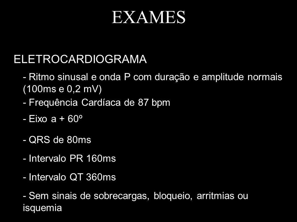 EXAMES ELETROCARDIOGRAMA - Ritmo sinusal e onda P com duração e amplitude normais (100ms e 0,2 mV) - Frequência Cardíaca de 87 bpm - Eixo a + 60º - QR
