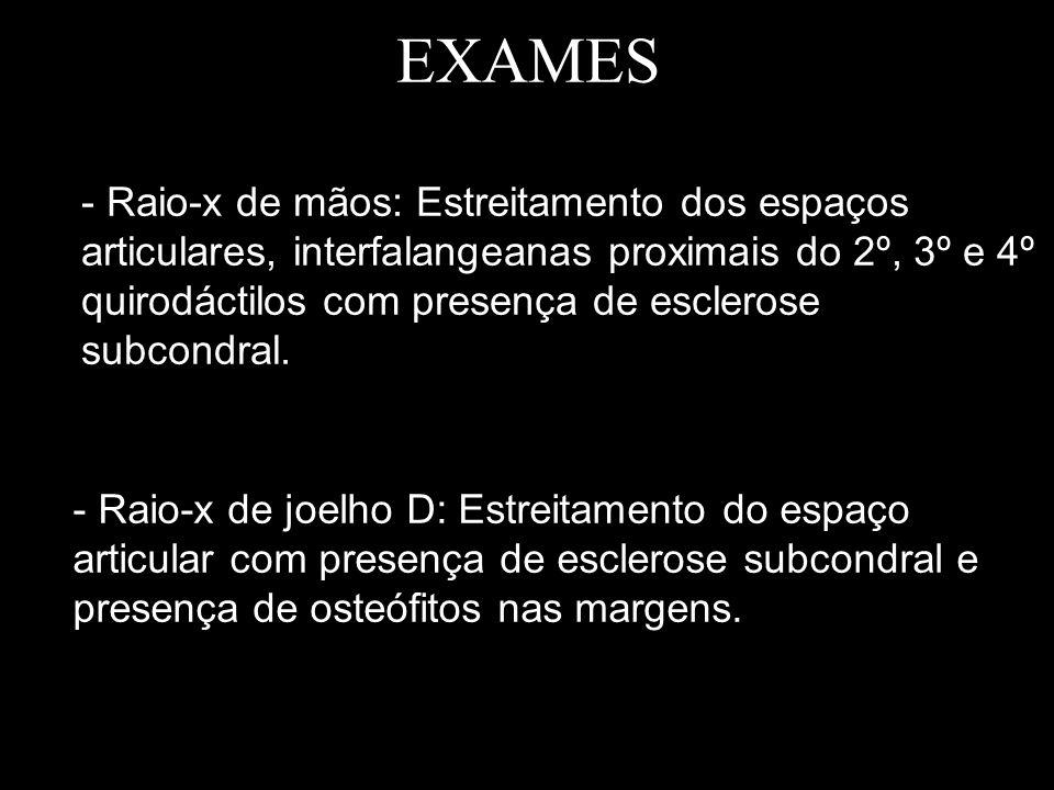EXAMES - Raio-x de mãos: Estreitamento dos espaços articulares, interfalangeanas proximais do 2º, 3º e 4º quirodáctilos com presença de esclerose subc