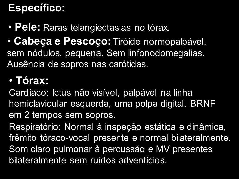 Específico: Pele: Raras telangiectasias no tórax. Cabeça e Pescoço: Tiróide normopalpável, sem nódulos, pequena. Sem linfonodomegalias. Ausência de so