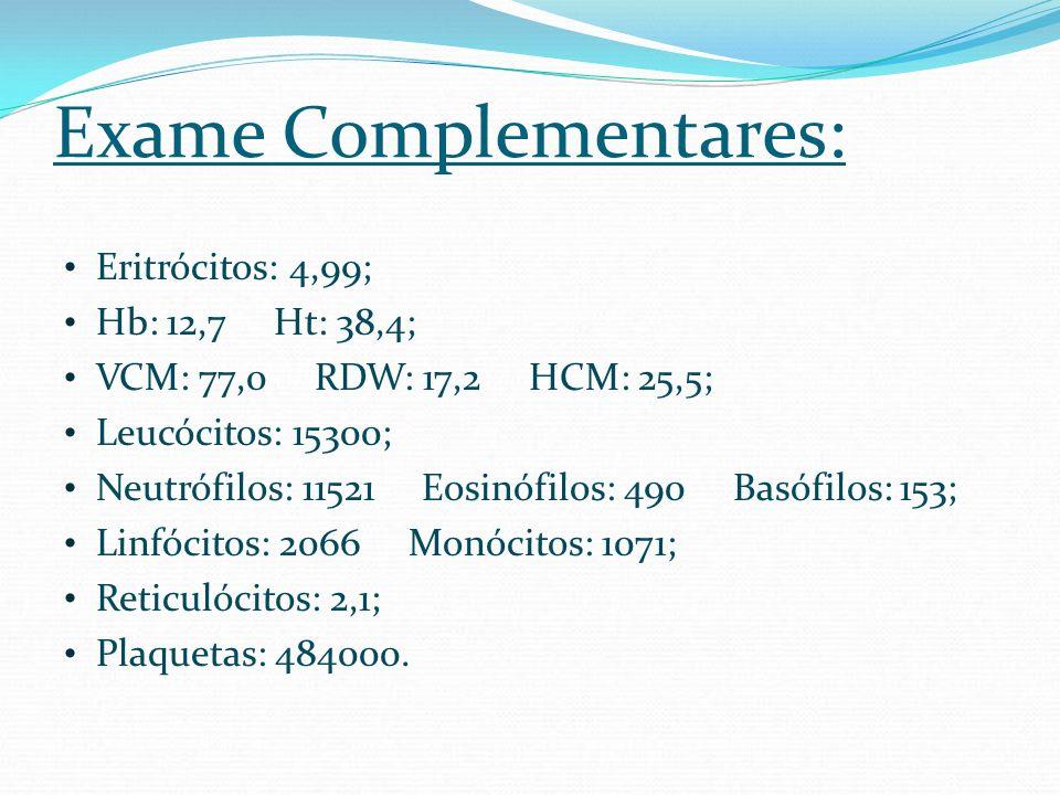Exame Complementares: Eritrócitos: 4,99; Hb: 12,7 Ht: 38,4; VCM: 77,0 RDW: 17,2 HCM: 25,5; Leucócitos: 15300; Neutrófilos: 11521 Eosinófilos: 490 Basó