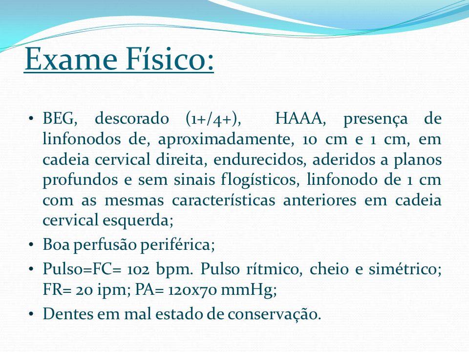 Exame Físico: BEG, descorado (1+/4+), HAAA, presença de linfonodos de, aproximadamente, 10 cm e 1 cm, em cadeia cervical direita, endurecidos, aderido