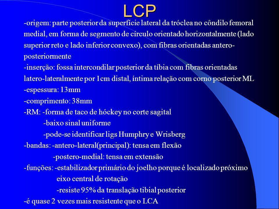 LCP -origem: parte posterior da superfície lateral da tróclea no côndilo femoral medial, em forma de segmento de círculo orientado horizontalmente (la