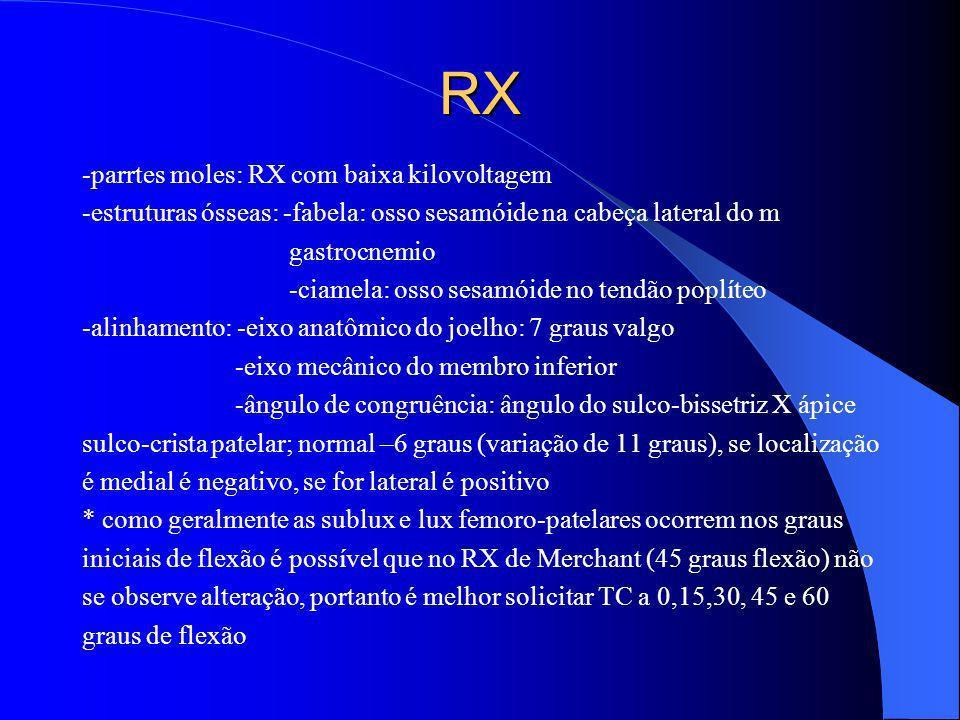 RX -parrtes moles: RX com baixa kilovoltagem -estruturas ósseas: -fabela: osso sesamóide na cabeça lateral do m gastrocnemio -ciamela: osso sesamóide