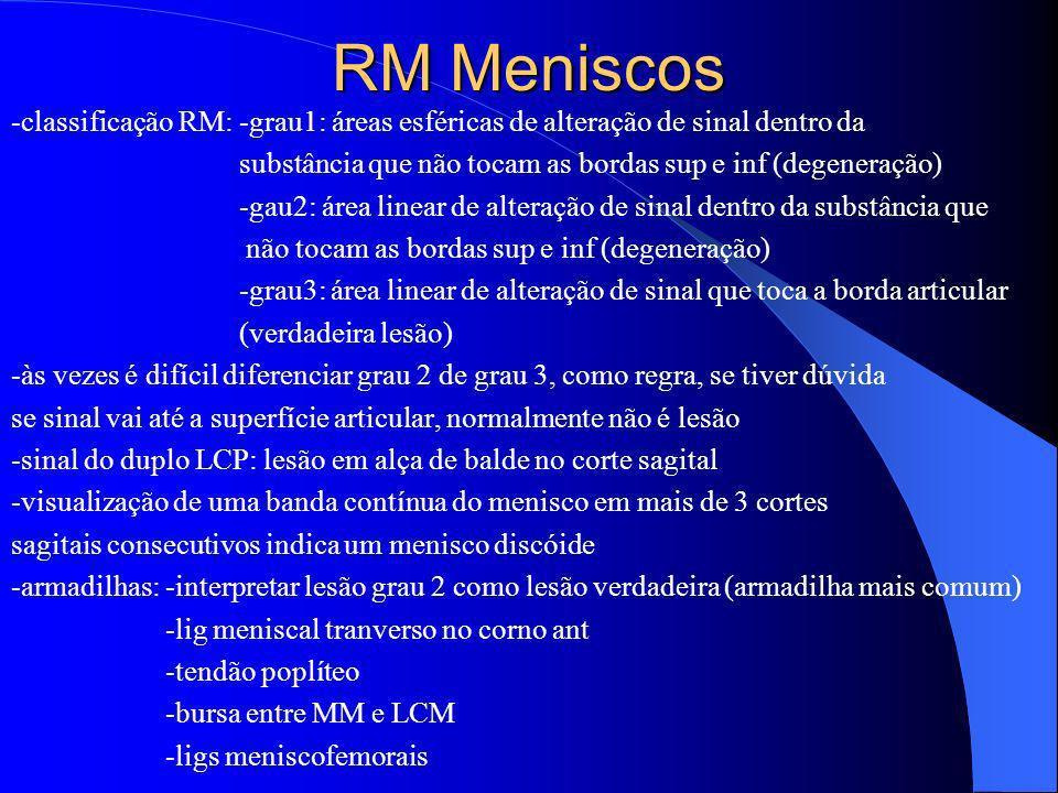 RM Meniscos -classificação RM: -grau1: áreas esféricas de alteração de sinal dentro da substância que não tocam as bordas sup e inf (degeneração) -gau