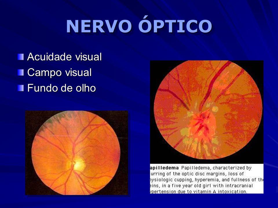 NERVO ÓPTICO Acuidade visual Campo visual Fundo de olho