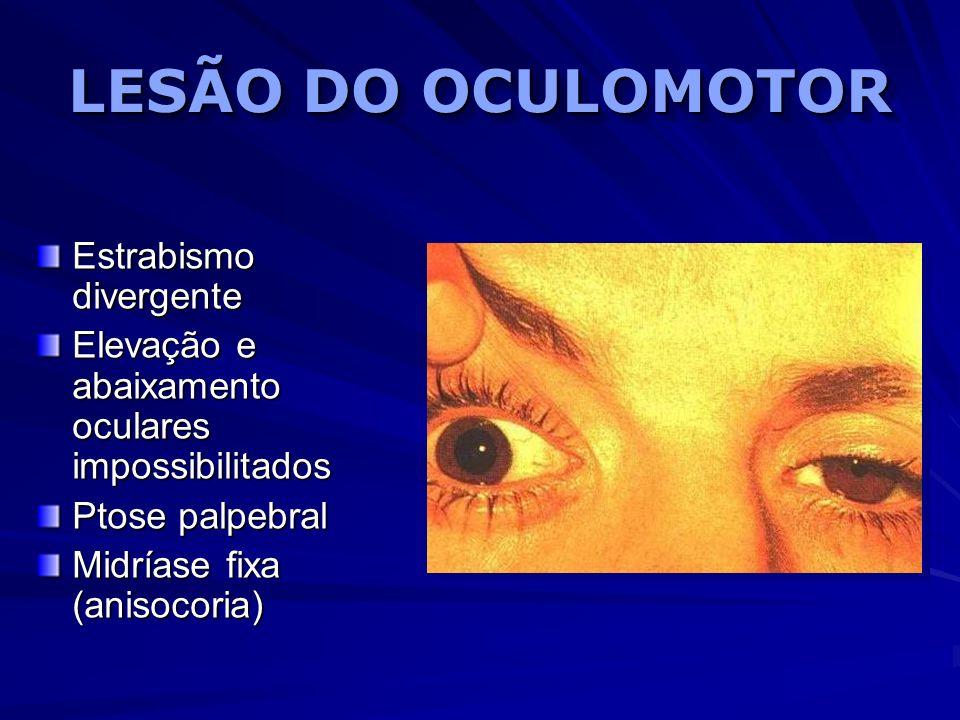 LESÃO DO OCULOMOTOR Estrabismo divergente Elevação e abaixamento oculares impossibilitados Ptose palpebral Midríase fixa (anisocoria)