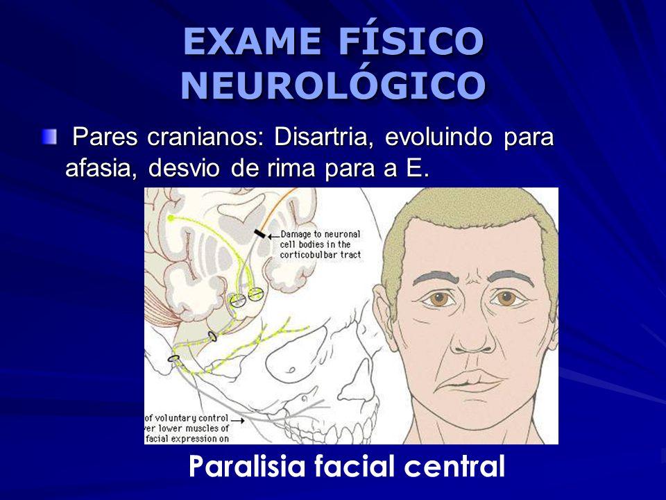 EXAME FÍSICO NEUROLÓGICO Pares cranianos: Disartria, evoluindo para afasia, desvio de rima para a E. Pares cranianos: Disartria, evoluindo para afasia