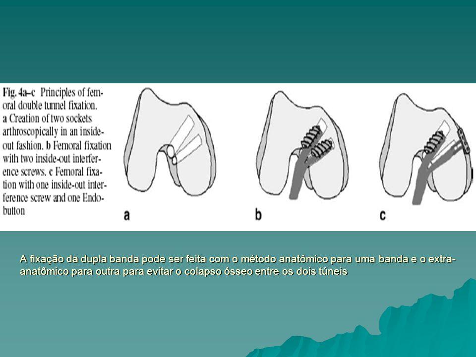 A fixação da dupla banda pode ser feita com o método anatômico para uma banda e o extra- anatômico para outra para evitar o colapso ósseo entre os doi