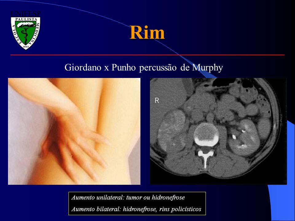 Rim Giordano x Punho percussão de Murphy Aumento unilateral: tumor ou hidronefrose Aumento bilateral: hidronefrose, rins policísticos