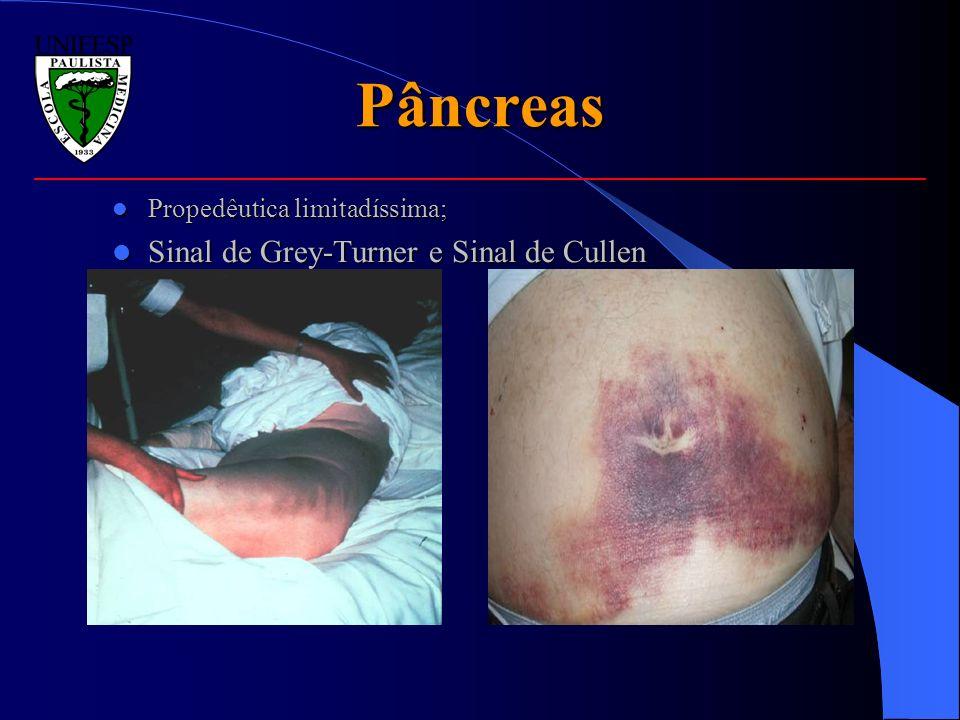 Pâncreas Propedêutica limitadíssima; Propedêutica limitadíssima; Sinal de Grey-Turner e Sinal de Cullen Sinal de Grey-Turner e Sinal de Cullen