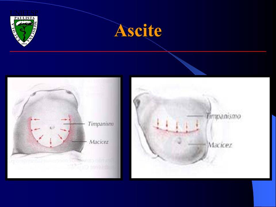 Ascite