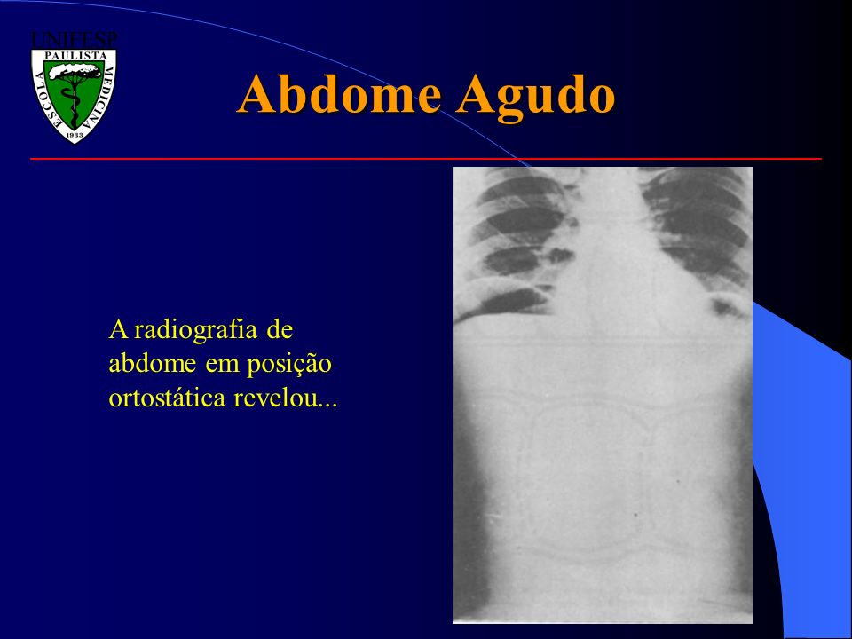 Abdome Agudo A radiografia de abdome em posição ortostática revelou...