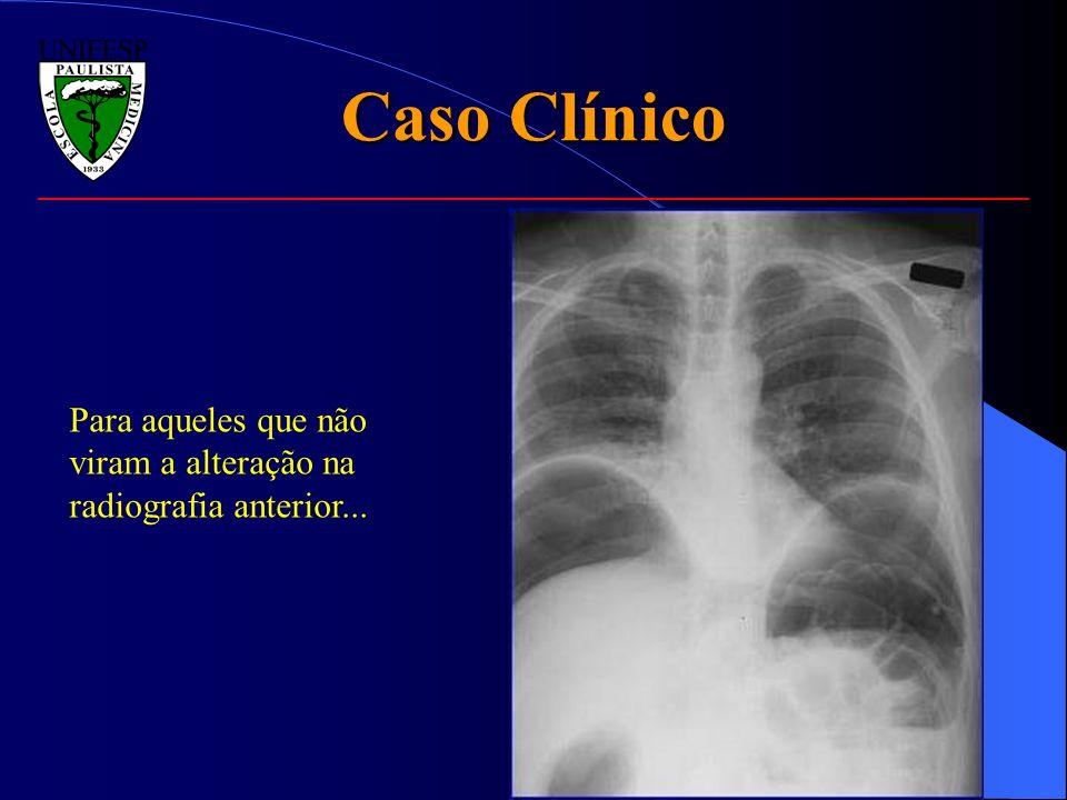 Caso Clínico Para aqueles que não viram a alteração na radiografia anterior...
