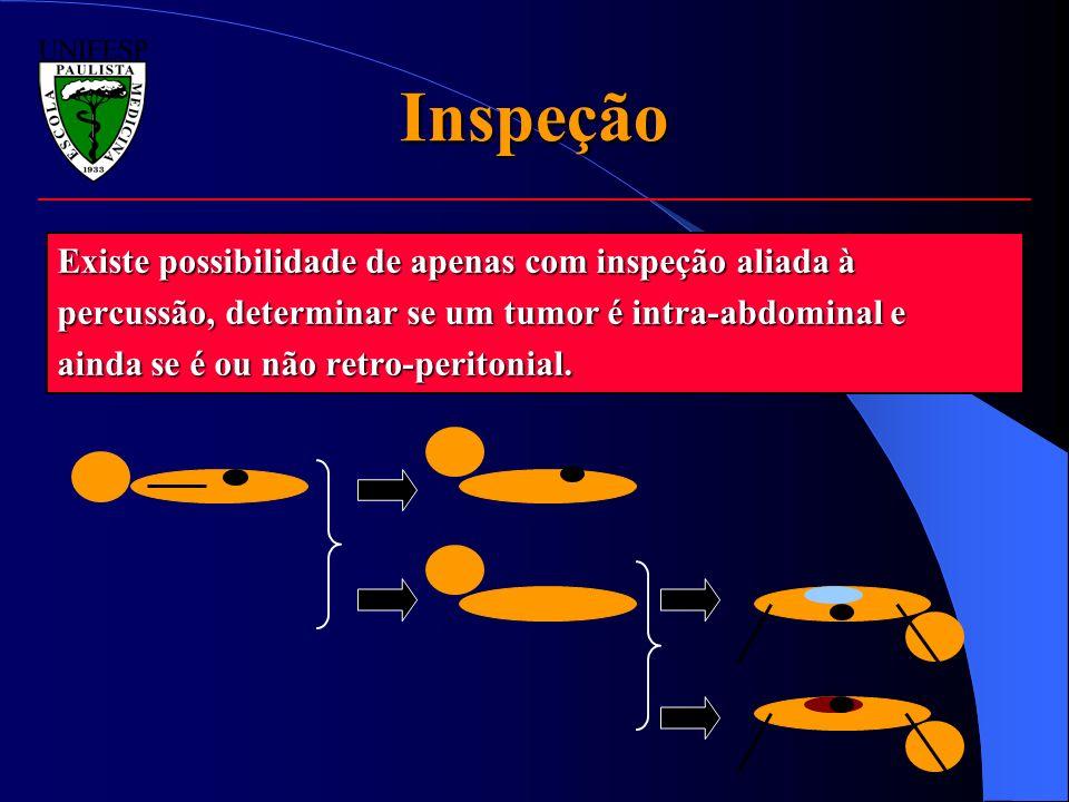 Inspeção Existe possibilidade de apenas com inspeção aliada à percussão, determinar se um tumor é intra-abdominal e ainda se é ou não retro-peritonial