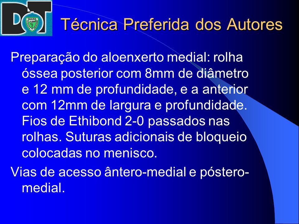 Técnica Preferida dos Autores Preparação do aloenxerto medial: rolha óssea posterior com 8mm de diâmetro e 12 mm de profundidade, e a anterior com 12m