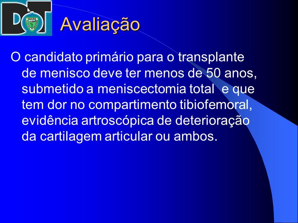 Avaliação O candidato primário para o transplante de menisco deve ter menos de 50 anos, submetido a meniscectomia total e que tem dor no compartimento
