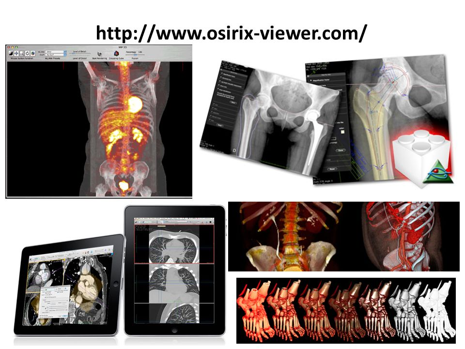 http://www.osirix-viewer.com/