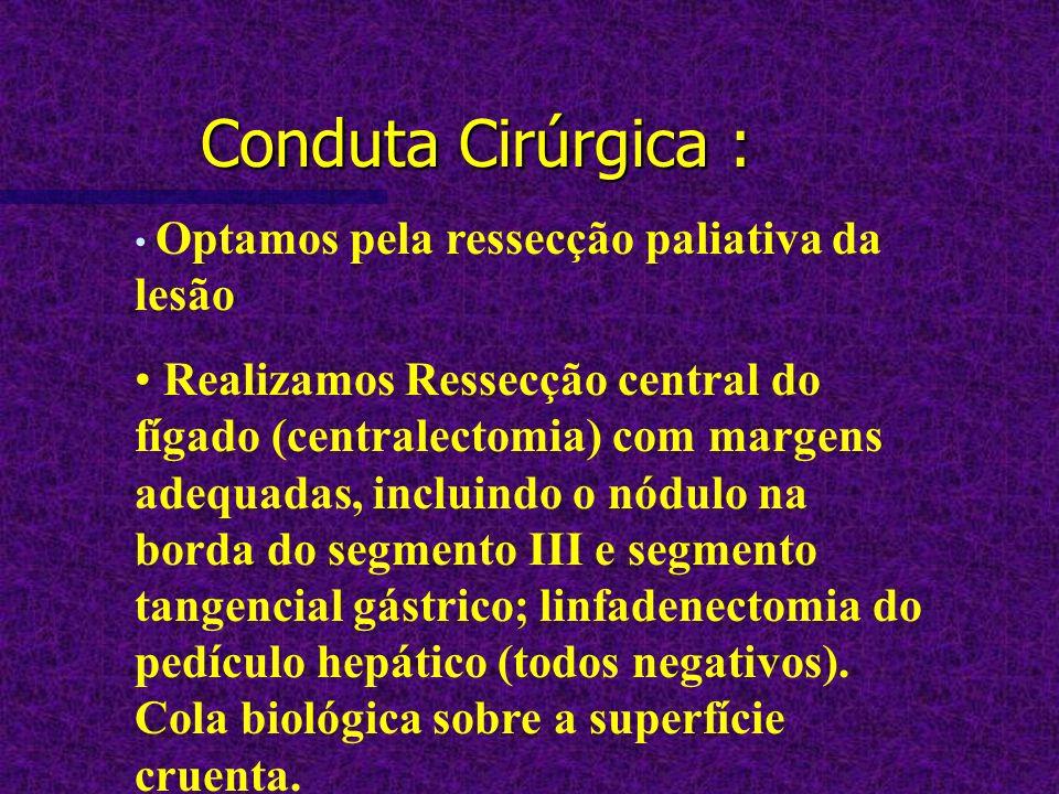 Conduta Cirúrgica : Optamos pela ressecção paliativa da lesão Realizamos Ressecção central do fígado (centralectomia) com margens adequadas, incluindo