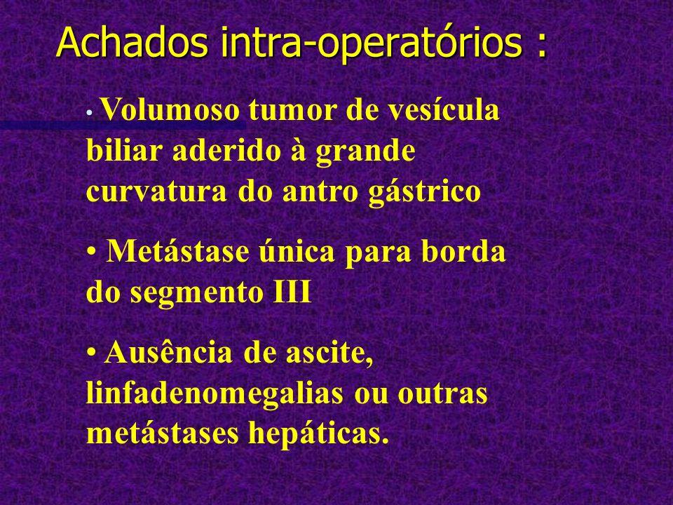 Achados intra-operatórios : Volumoso tumor de vesícula biliar aderido à grande curvatura do antro gástrico Metástase única para borda do segmento III