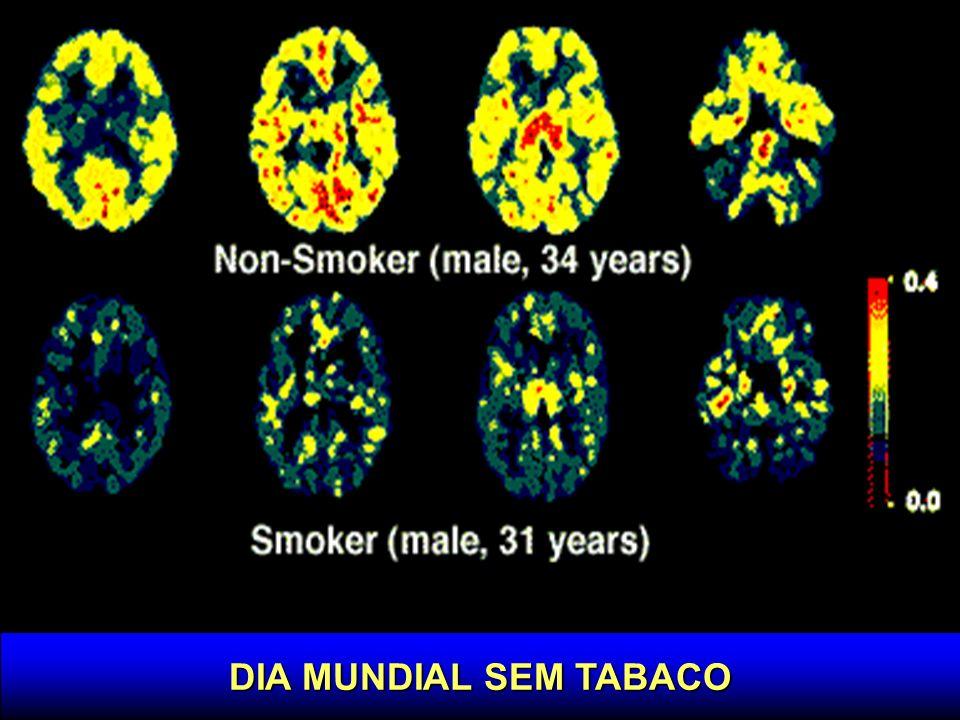 Aneursima cerebral x tabagismo 92 % dos pacientes com aneurismas > 24 mm, 78 % dos pacientes com aneurismas de 13 mm.
