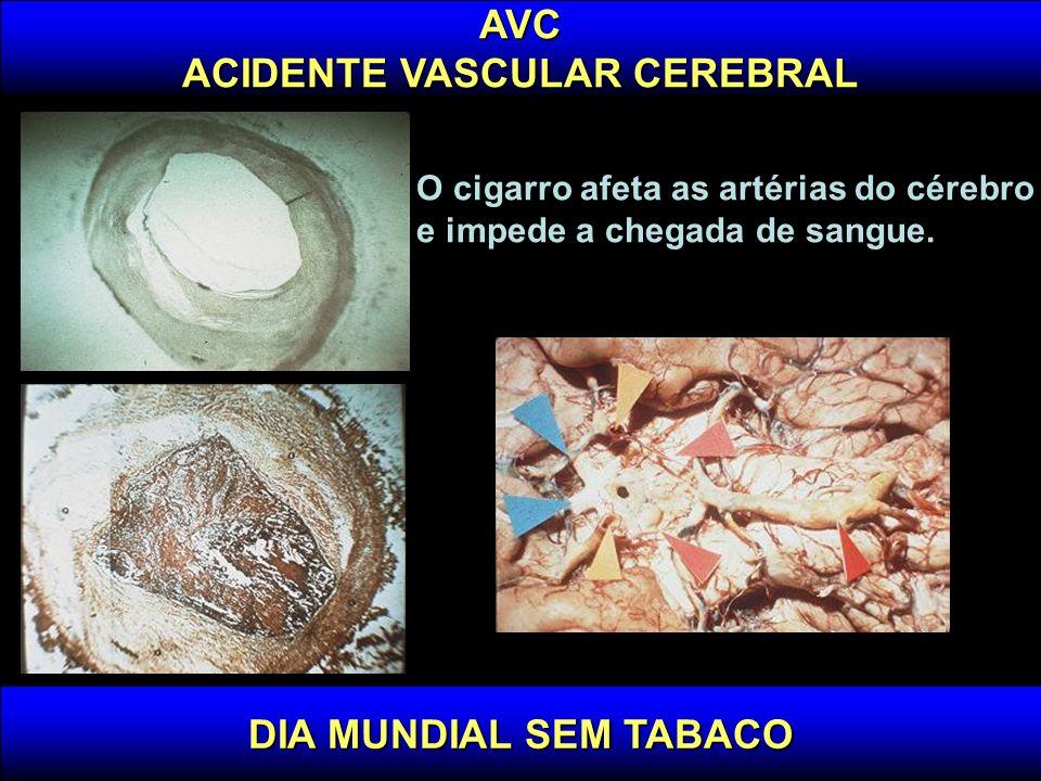 DIA MUNDIAL SEM TABACO AVC ACIDENTE VASCULAR CEREBRAL A cada minuto alguém no Brasil tem um AVC A cada 5 minutos alguém morre de AVC AVC é a terceira causa de óbito em quase todo o mundo.