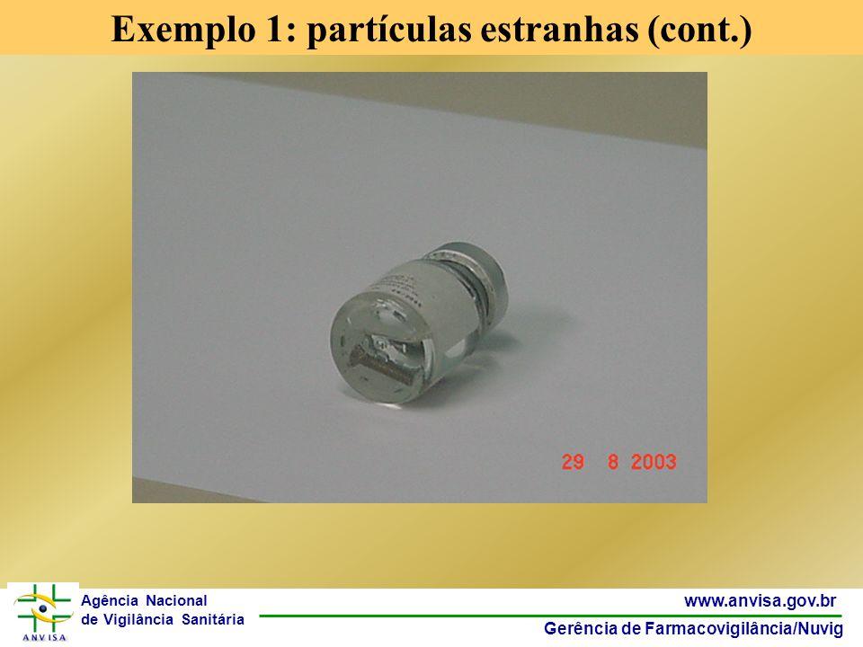 8 www.anvisa.gov.br Gerência de Farmacovigilância/Nuvig Agência Nacional de Vigilância Sanitária Exemplo 1: partículas estranhas (cont.)