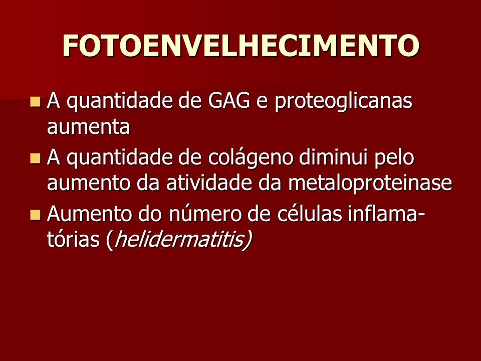 FOTOENVELHECIMENTO A quantidade de GAG e proteoglicanas aumenta A quantidade de GAG e proteoglicanas aumenta A quantidade de colágeno diminui pelo aum