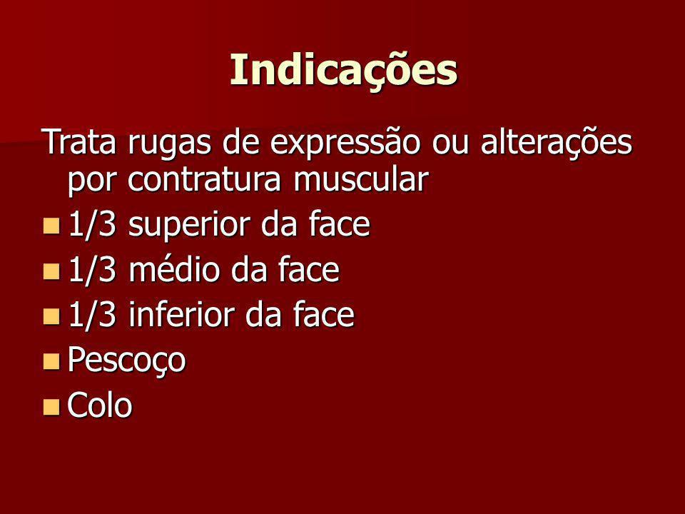 Indicações Trata rugas de expressão ou alterações por contratura muscular 1/3 superior da face 1/3 superior da face 1/3 médio da face 1/3 médio da fac