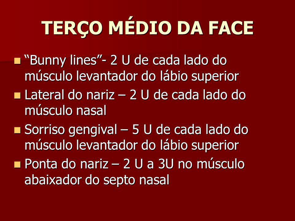 TERÇO MÉDIO DA FACE Bunny lines- 2 U de cada lado do músculo levantador do lábio superior Bunny lines- 2 U de cada lado do músculo levantador do lábio