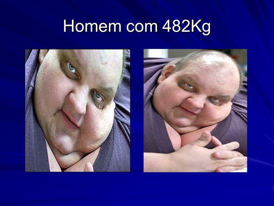 Homem com 482Kg