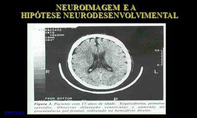 NEUROIMAGEM E A NEUROIMAGEM E A HIPÓTESE NEURODESENVOLVIMENTAL HIPÓTESE NEURODESENVOLVIMENTAL FFFCMPA