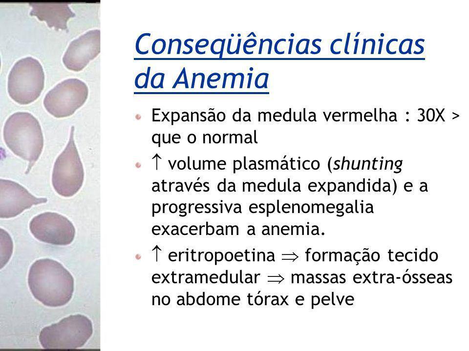 Conseqüências clínicas da Anemia Expansão da medula vermelha : 30X > que o normal volume plasmático (shunting através da medula expandida) e a progres