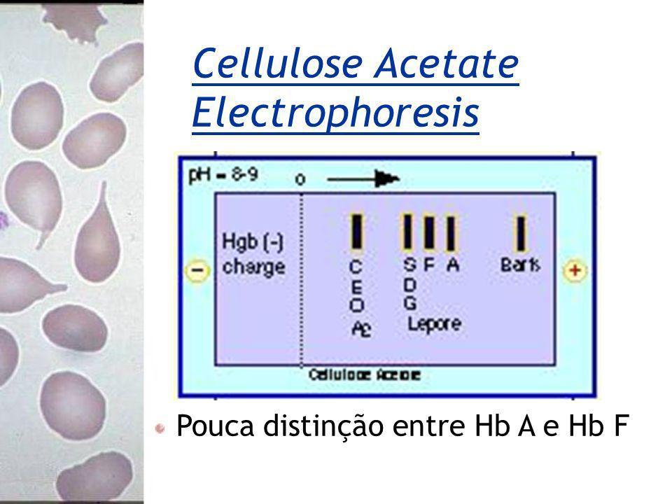 Cellulose Acetate Electrophoresis Pouca distinção entre Hb A e Hb F