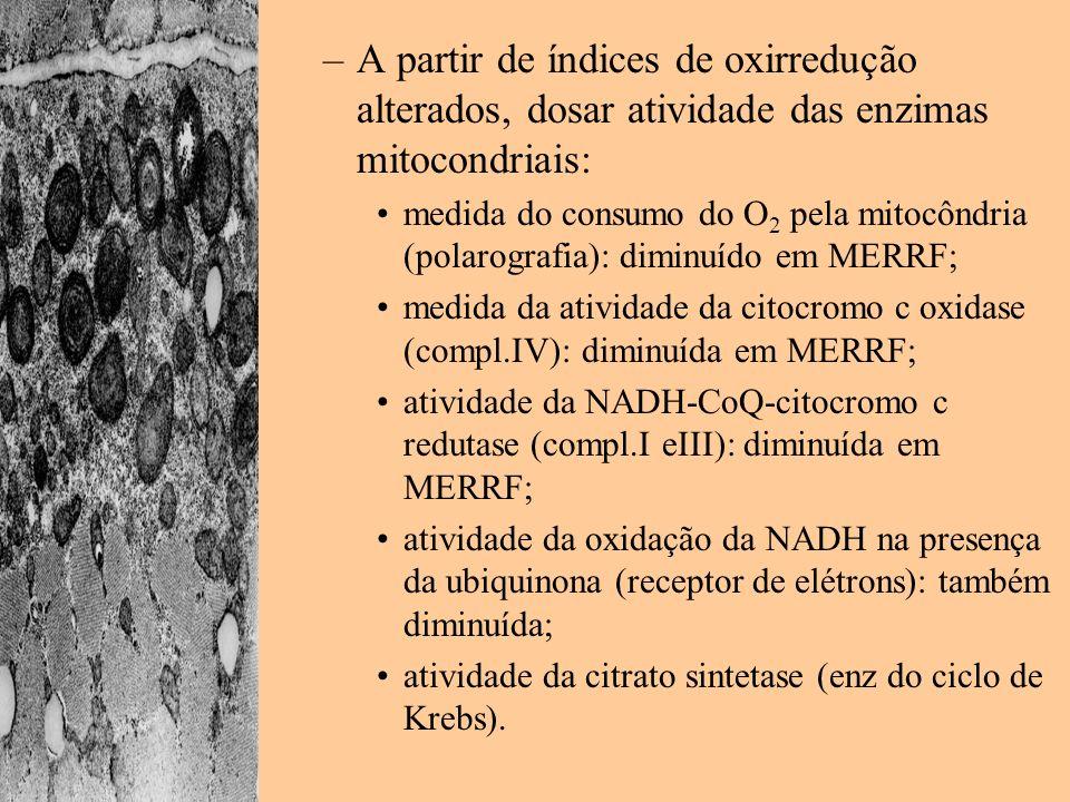 –A partir de índices de oxirredução alterados, dosar atividade das enzimas mitocondriais: medida do consumo do O 2 pela mitocôndria (polarografia): di
