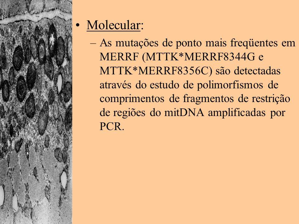 Molecular: –As mutações de ponto mais freqüentes em MERRF (MTTK*MERRF8344G e MTTK*MERRF8356C) são detectadas através do estudo de polimorfismos de com