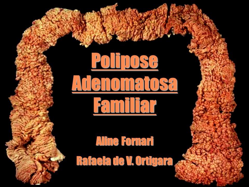 PoliposeAdenomatosaFamiliar Aline Fornari Rafaela de V. Ortigara