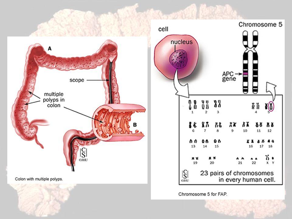 Aspectos Genéticos O Gene APC –Formado por 15 éxons –8532 pares de bases –Codifica uma proteína com 2844 aminoácidos –Éxon 15 é o maior deles, corresponde a 75% da região codificadora