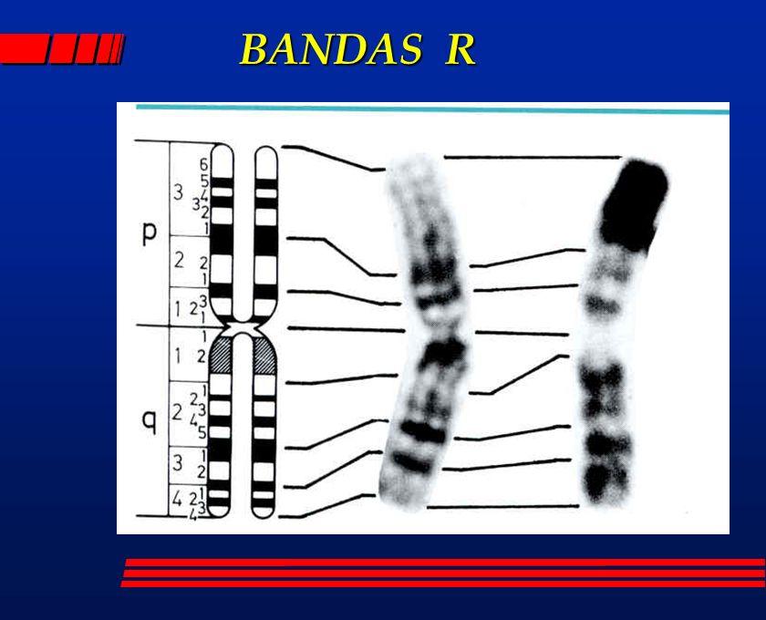 BANDAS R BANDAS R