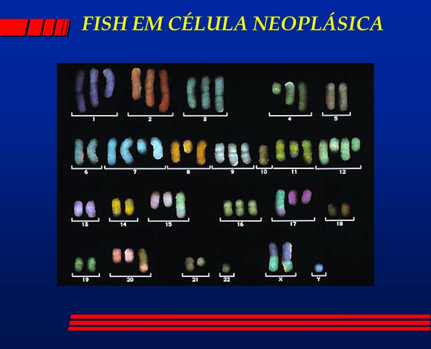 FISH EM CÉLULA NEOPLÁSICA