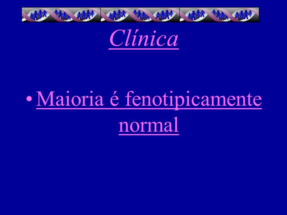 Clínica Crescimento acelerado na infância Altura 7 cm acima do esperado, proporções normais Dentes largos Pectus escavatum leve Puberdade tardia Acne nodulocística ( neonato )
