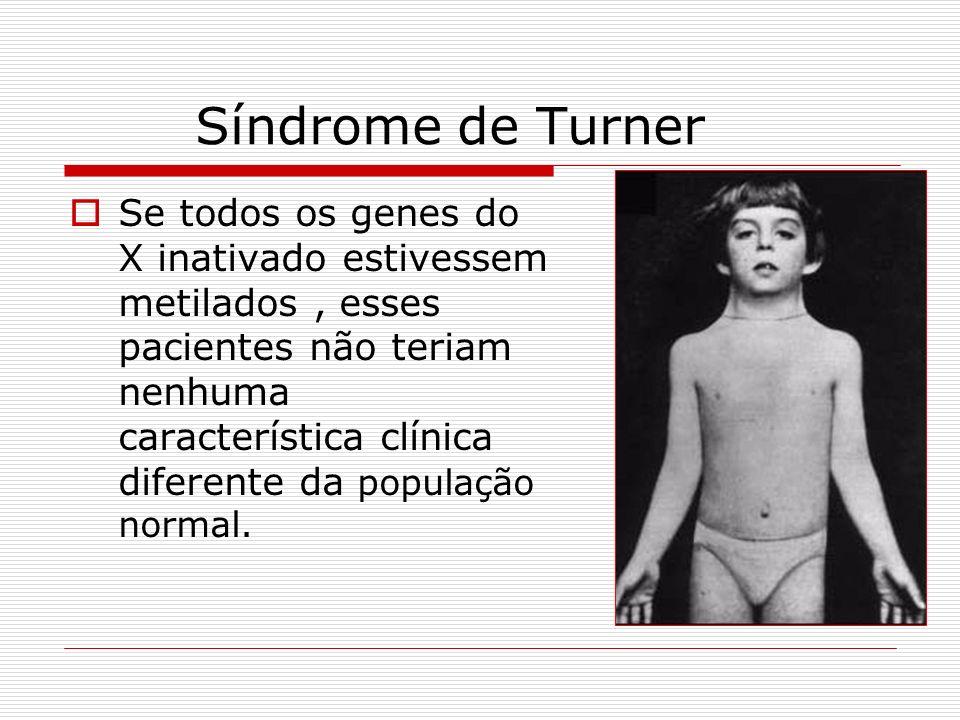 Síndrome de Turner Se todos os genes do X inativado estivessem metilados, esses pacientes não teriam nenhuma característica clínica diferente da popul