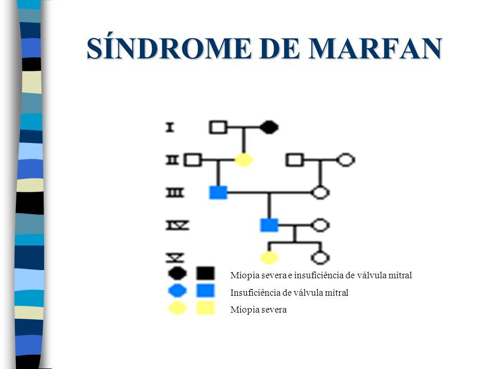 SÍNDROME DE MARFAN Miopia severa e insuficiência de válvula mitral Insuficiência de válvula mitral Miopia severa