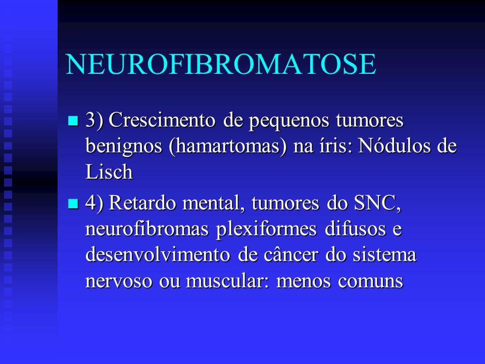 NEUROFIBROMATOSE 3) Crescimento de pequenos tumores benignos (hamartomas) na íris: Nódulos de Lisch 3) Crescimento de pequenos tumores benignos (hamar